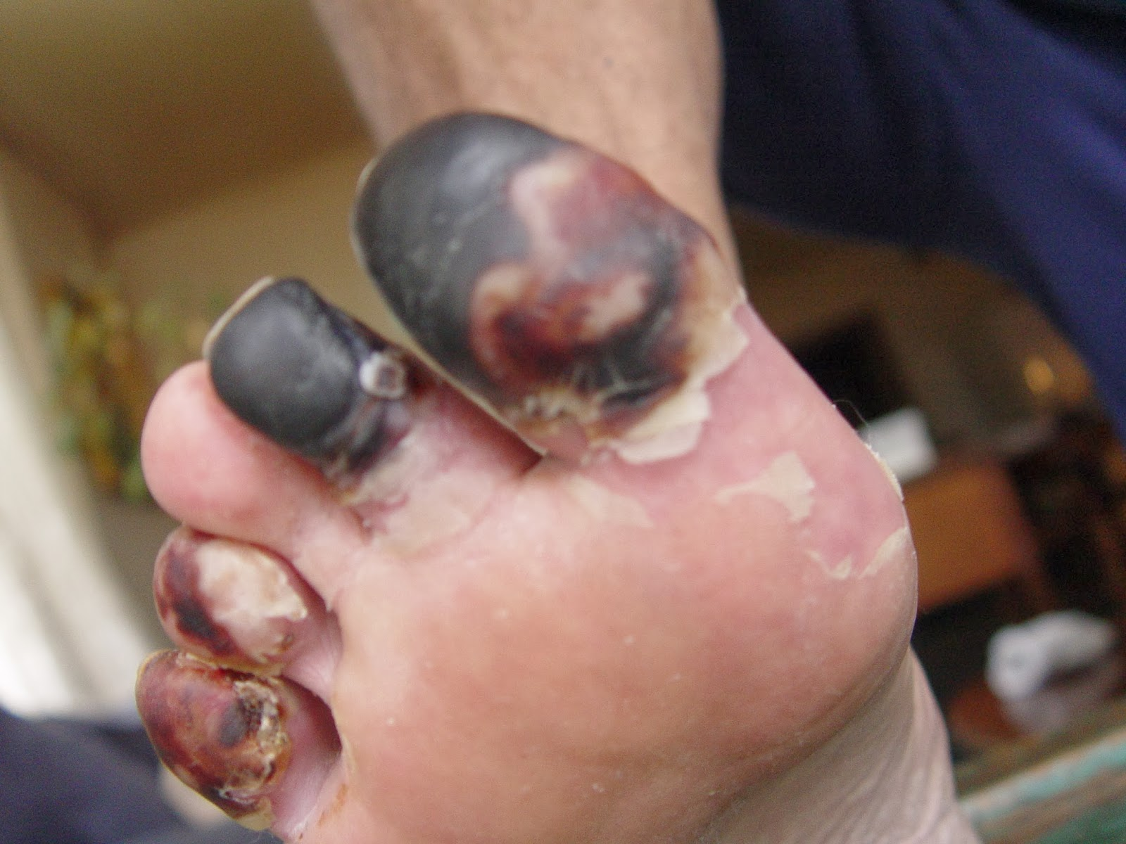Gangrene And Its Monstrous Threat To Sportsmen